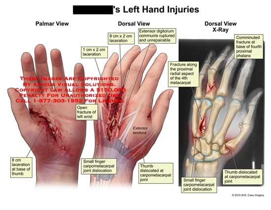 amicus illustration of amicus,injury,hand,laceration,base,thumb Body Tendons Diagram left hand injuries (no description available)