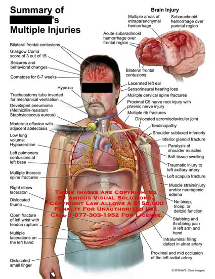 amicus,injury,summary,multiple,injuries,bilateral,frontal,contusions,glasgow,coma,score,seizures,behavioral,changes,comatose,weeks,hypoxia,tracheostomy,tube,inserted,mechanical,ventilation,developed,pneumonia,methicillin-resistant,staphylococcus,aureus,effusion,atelectasis,low,lung,volume,hypoaeration,pulmonary,base,thoracic,spine,fractures,elbow,laceration,dislocated,thumb,open,wrist,tendon,rupture,dislocated,finger,brain,subarachnoid,hemorrhage,region,intraparenchymal,parietal,lacerated,ear,se