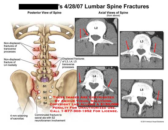 amicus,injury,spine,lumbar,fractures,L2,L3,L4,L5,non-displaced,transverse,processes,widening,sacroiliac,comminuted,sacral,ala,S2,neuroforamen,involvement