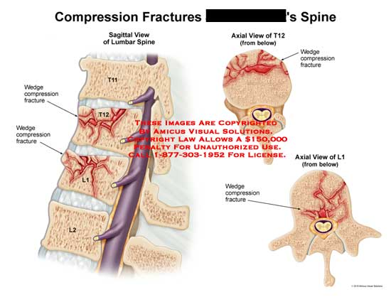 AMICUS Illustration of amicus,injury,spine,compression,fractures ...