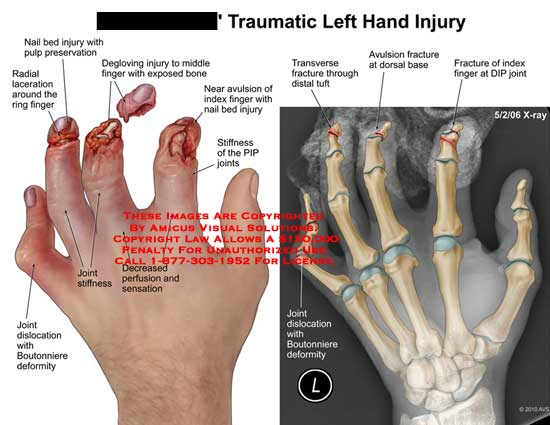 amicus,injury,hand,traumatic,nail,bed,pulp,preservation,radial,laceration,ring,finger,joints,dislocation,Boutonniere,deformity,stiffness,perfusion,sensation,degloving,middle,exposed,bone,avulsion,index,PIP,transverse,fracture,tuft,base,DIP