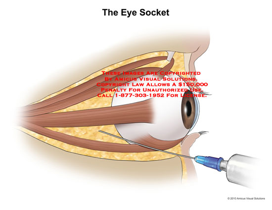Amicus illustration of amicusnokeywords the eye socket no description available ccuart Image collections