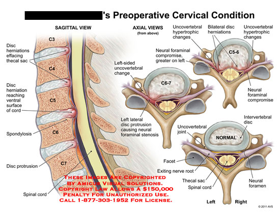 amicus,injury,preoperative,cervical,spine,vertebral,column,condition,disc,herniations,effacing,thecal,sac,cord,spondylosis,protrusion,spinal,cord,uncovertebral,change,neural,foraminal,stenosis,compromise,hypertrophic,intervertebral,facet,exiting,nerve,root,foramen