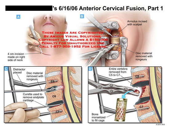 amicus,surgery,cervical,spine,vertebral,column,fusion,part,1,incision,neck,distractor,disc,material,removed,rongeurs,curette,endplate,cartilage,annulus,incised,scapel,vertebra,C5,C7,bone,morselized,fill,cage