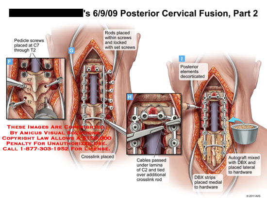 amicus,surgery,cervical,spine,vertebral,column,fusion,part,2,pedicle,screws,C7,T2,rods,locked,set,crosslink,decorticated,cables,lamina,C2,DBX,strips,hardware,autograft,