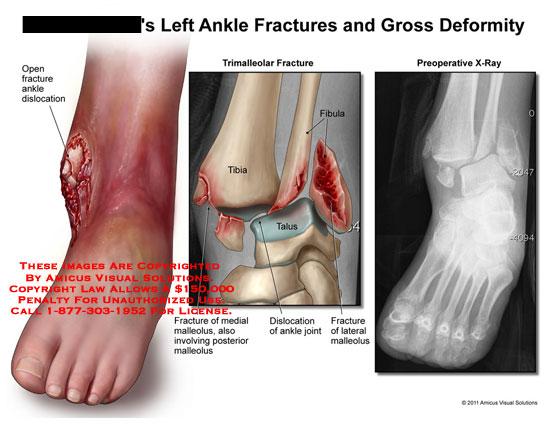 amicus,injury,ankle,fractures,gross,deformity,open,dislocation,trimalleolar,tibia,fibula,talus,malleolus,
