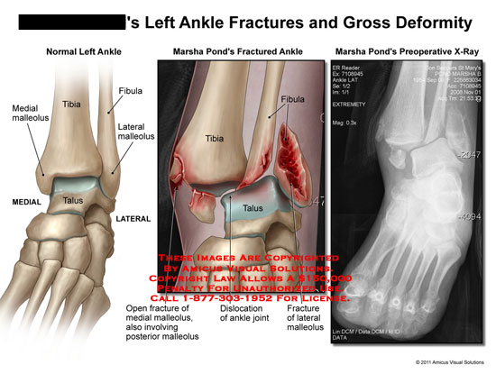 amicus,injury,ankle,fractures,gross,deformity,malleolus,tibia,fibula,talus,dislocation,joint,