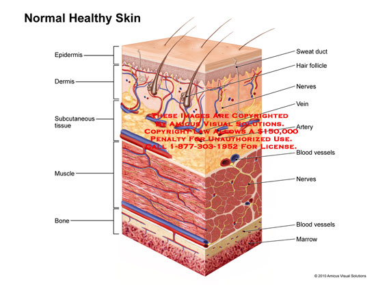 amicus,medical,skin,normal,healthy,epidermis,dermis,subcutaneous,tissue,muscle,bone,sweat,duct,hair,follicle,nerves,vein,artery,blood,vessels,marrow
