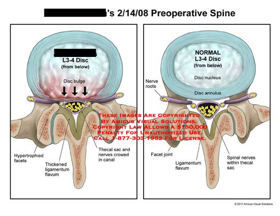 amicus,injury,spine,lumbar,L3-4,disc,bulge,preoperative,hypertrophied,facets,thickened,ligamentum,flavum,thecal,sac,nerves,crowed,normal,nucleus,annulus,roots,joint,