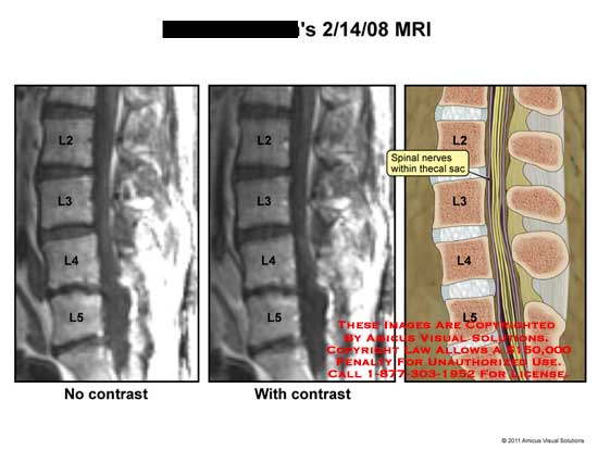 amicus,radiology,MRI,lumbar,spinal,column,vertebrae,spinal,nerves,thecal,sac
