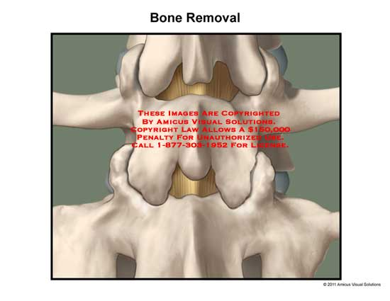 amicus,surgery,disc,space,spine,vertebral,column,bone,removal