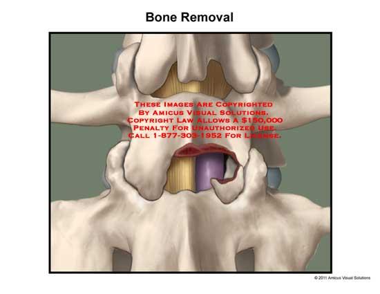amicus,surgery,disc,space,spine,vertebral,column,bone,removal