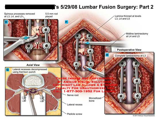 amicus,surgery,lumbar,spine,vertebral,column,part,2,fusion,spinous,processes,removed,L3,L4,L5,5.5mm,rod,placed,recesses,decompressed,Kerrison,punch,Lamina,thinned,midline,laminectomy,complete,morcellized,bone,nerve,root,pedicle,screw