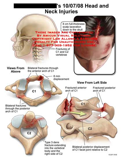amicus,injury,head,neck,fractures,C1,C2,vertebrae,scalp,laceration,skull,arch,displacement,type,3,dens,vertebral,body,facet,joint,