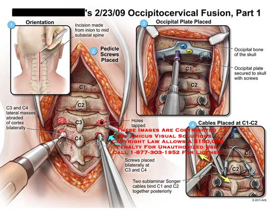 amicus,surgery,cervical,spine,vertebral,column,occipitocervical,fusion,part,1,incision,inion,subaxial,pedicle,screws,placed,C3,C4,masses,abraded,cortex,bilaterally,holes,tapped,occipital,plate,bone,skull,secured,sublaminar,songer,cables,bind,C1,C2,C1-C2