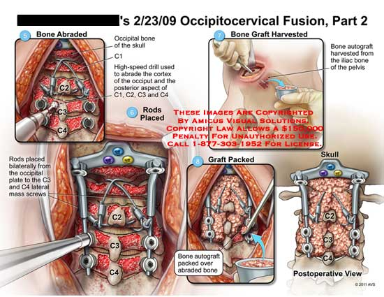 amicus,surgery,cervical,spine,vertebral,column,occipitocervical,fusion,part,2,bone,abraded,occipital,bone,skull,C1,high-speed,drill,cortex,occiput,posterior,aspect,C1,C2,C3,C4,graft,harvested,autograft,iliac,pelvis,rods,placed,bilaterally,plate,lateral,mass,screws,packed,over,