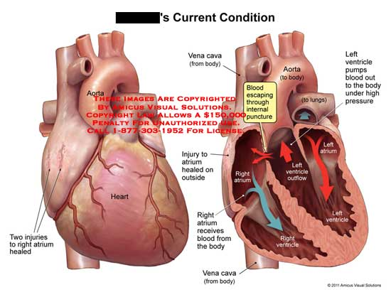 amicus,medical,heart,current,condition,aorta,injuries,right,atrium,healed,vena,cava,blood,escaping,internal,puncture,outside,receives,body,under,high,pressure,