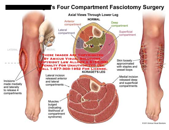 amicus,surgery,leg,four,compartments,fasciotomy,incisions,released,4,anterior,lateral,deep,superficial,muscles,bulged,indicating,likelihood,syndrome,skin,loosely,approximated,staples,vessel,loops,