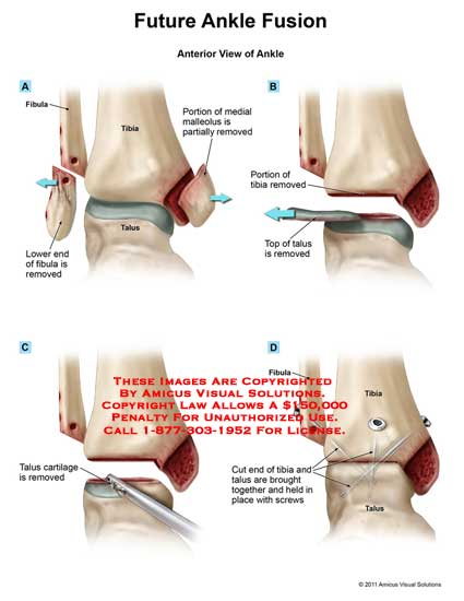 amicus,surgery,ankle,future,fusion,fibula,tibia,talus,end,removed,portion,medial,malleolus,partially,removed,top,cut,held,place,screws