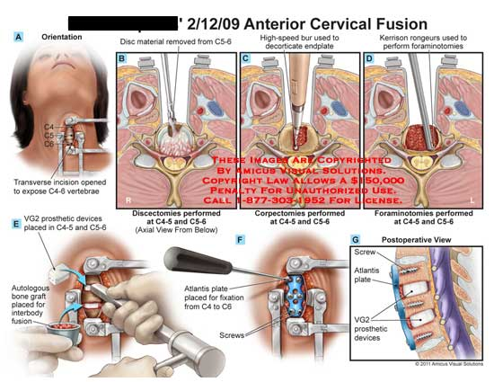 amicus,surgery,cervical,spine,vertebrae,vertebral,column,C4,C5,C6,disc,material,removed,C5-6,discectomies,performed,C4-5,C5-6,high-speed,bur,decorticate,endplate,corpectomies,kerrison,rongeurs,foraminotomies,transverse,incision,C4-6,expose,VG2,prosthetic,devices,placed,autologous,bone,graft,interbody,fusion,atlantis,plate,fixation,screws,