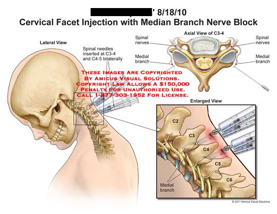 amicus,medical,cervical,spine,vertebrae,vertebral,column,facet,injection,median,branch,nerves,block,spinal,needles,inserted,C3-4,C4-5,bilaterally,medial,