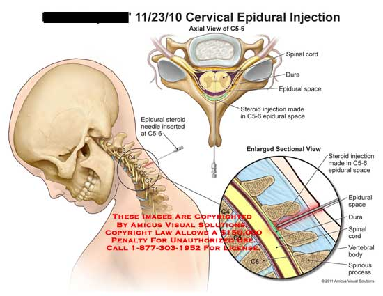 amicus,medical,cervical,spine,vertebrae,vertebral,column,epidural,injection,spinal,cord,dura,space,steriod,C5-6,needle,body,spinous,process