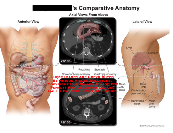 amicus,anatomy,comparative,abdomen,abdominal,cavity,roux,limb,stomach,choledochojejunostomy,gastrojejunostomy,liver,mesh,tacks,transverse,colon