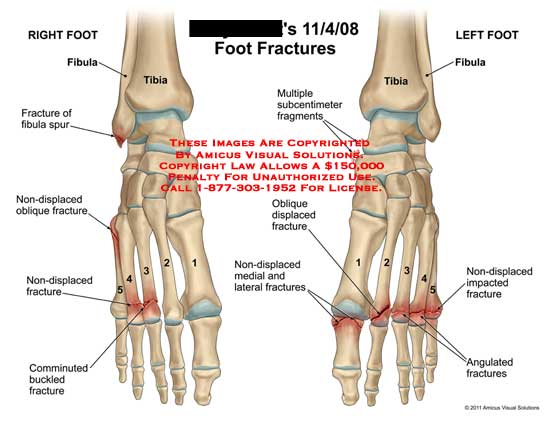 amicus,injury,foot,fractures,bone,fibula,tibia,spur,non-displaced,oblique,comminuted,buckled,multiple,subcentimeter,fragments,displaced,impacted,angulated