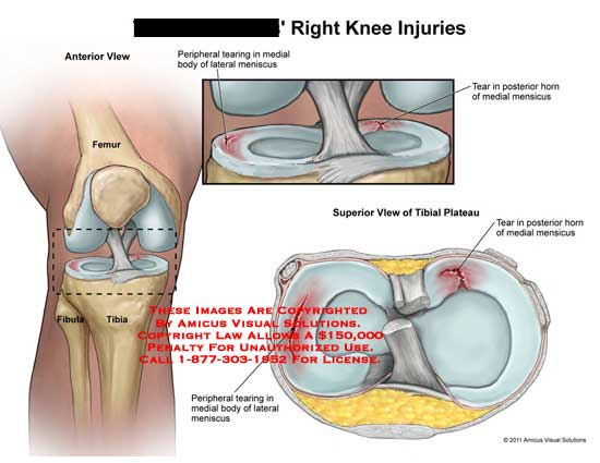 amicus,injury,knee,injuries,femur,tibia,fibula,peripheral,tearing,medial,body,lateral,meniscus,posterior,horn,tibial,plateau,