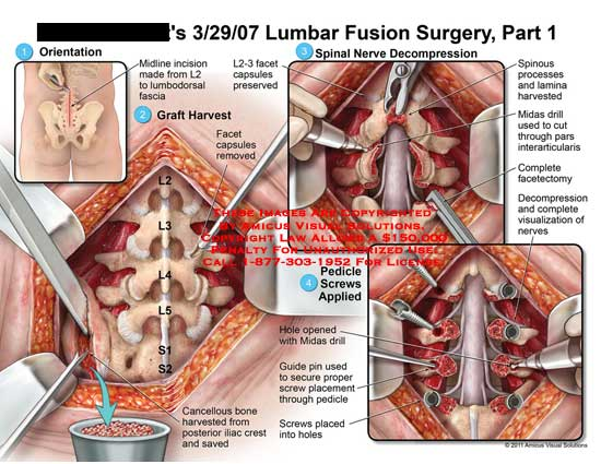 amicus,surgery,lumbar,fusion,spine,part,1,vertebrae,vertebral,column,midline,incision,lumbodorsal,fascia,graft,harvested,facet,capsules,removed,L2-3,preserved,spinal,nerves,decompression,spinous,processes,lamina,midas,drill,cut,pars,interarticularis,complete,facetectomy,decompression,visualization,pedicle,screws,applied,hole,opened,guide,pin,secure,proper,placement,cancellous,bone,saved