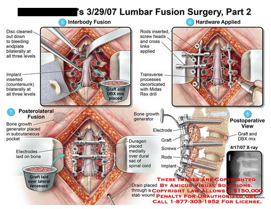 amicus,surgery,lumbar,spine,part,2,vertebrae,vertebral,column,fusion,disc,cleaned,out,bleeding,endplate,bilaterally,three,levels,interbody,implant,inserted,countersunk,hardware,applied,rods,screws,heads,cross,links,transverse,processes,decorticated,Midas,Rex,drill,graft,DBX,mix,placed,bone,growth,generator,subcutaneous,pocket,electrodes,laid,recesses,duragen,dural,sac,spinal,cord,drain,stab,electrode,