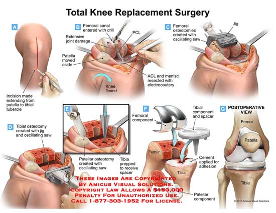 amicus,surgery,knee,total,replacement,incision,patella,tibial,tubercle,femoral,canal,entered,drill,joint,damage,aside,PCL,flexed,ACL,menisci,resected,electrocautery,osteotomies,created,oscillating,saw,osteotomy,jig,patellar,prepped,receive,spacer,component,femur,cement,applied,adhesion,