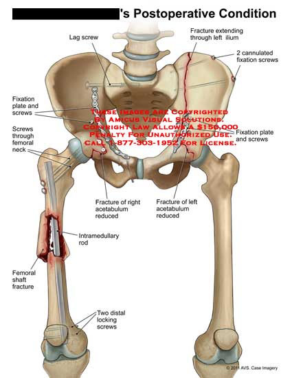 amicus,surgery,postoperative,condition,leg,screws,fixation,plate,femoral,neck,shaft,fracture,two,locking,intramedullary,rod,acetabulum,reduced,fixation,2,cannulated,extending,ilium