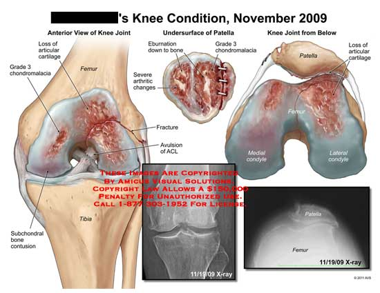 amicus,injury,knee,condition,loss,articular,cartilage,grade,3,chondromalacia,femur,tibia,subchondral,bone,contusion,undersurface,patella,eburnation,down,bone,arthritic,changes,fracture,avulsion,ACL,condyle