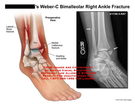 amicus illustration of amicus injury ankle fracture weber. Black Bedroom Furniture Sets. Home Design Ideas