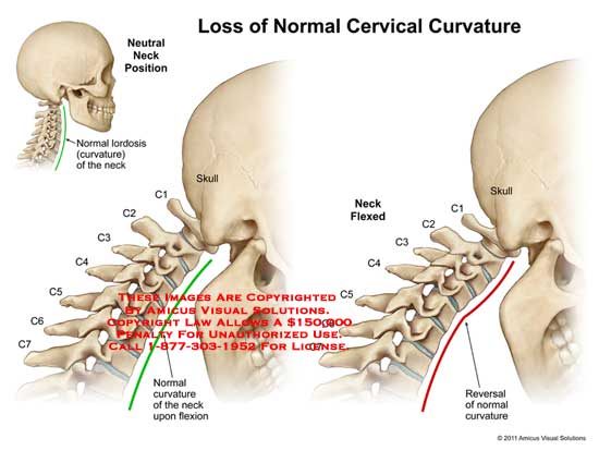 amicus,medical,cervical,spine,loss,curvature,neutral,neck,position,lordosis,skull,flexion,reversal