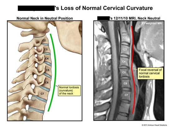 amicus,medical,cervical,spine,loss,curvature,neutral,normal,position,lordosis,focal,reversal,MRI