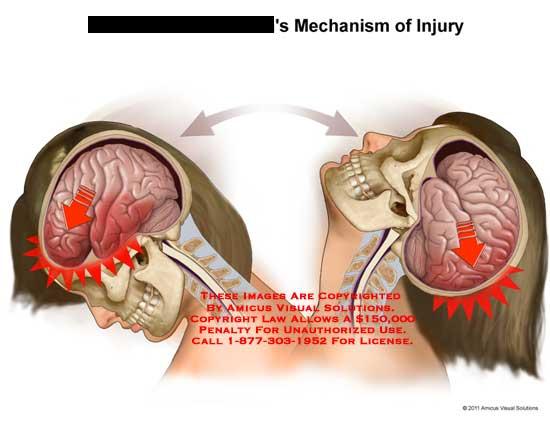amicus,injury,brain,no,keywords