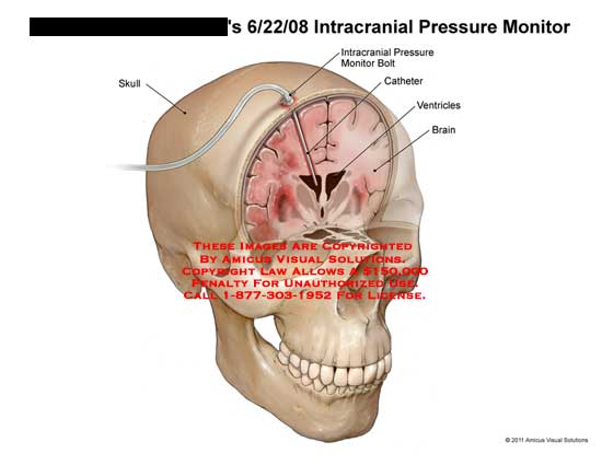 amicus,surgery,brain,head,skull,intracranial,pressure,monitor,bolt,catheter,ventricles,brain