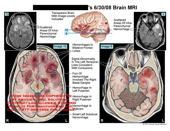 amicus,injury,brain,head,MRI,scattered,areas,intraparenchymal,hemorrhages,bilateral,frontal,lobes,signal,abnormality,temporal,consistent,contusions,foci,basal,ganglia,putamen,midbrain,subdural
