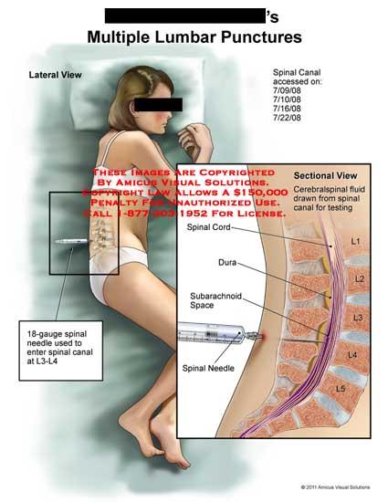 traumatic lumbar retrolisthesis Traumatic spondylolisthesis of the lumbar spine is traumatic spondylolisthesis of the lumbar jayaswal a traumatic retrolisthesis of the l4 vertebra.