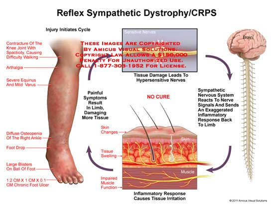 amicus,injury,leg,reflex,sympathetic,dystrophy,CRPS,initiates,cycle,contracture,joint,knee,spacticity,walking,difficulty,arthalgia,equinus,varus,diffuse,osteopenia,ankle,foot,drop,blisters,ball,foot,chronic,ulcer,painful,symptoms,limb,damaging,tissue,sensitive,hypersensitive,nerves,nervous,system,signals,inflammatory,response,irritation,impaired,muscle,function,tissue,swelling,skin,changes,brain