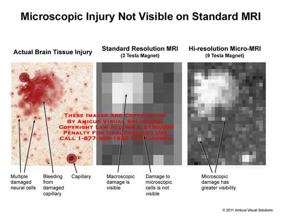 amicus,injury,brain,tissue,microscopic,not,visible,standard,MRI,damaged,neural,cells,bleeding,capillary,macroscopic,resolutioni,HI-resolution,micro-MRI,3,9,tesla,magnet