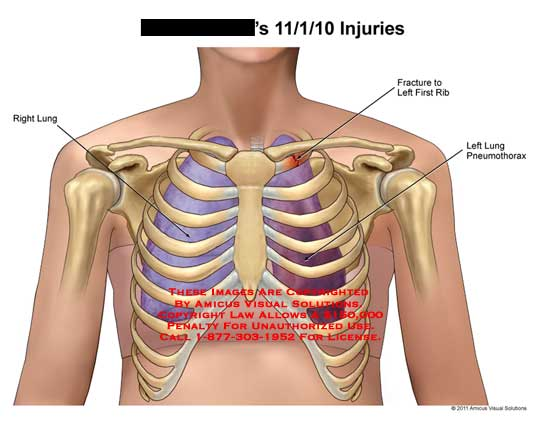 amicus,injury,injuries,lung,fracture,first,1st,rib,pneumothorax