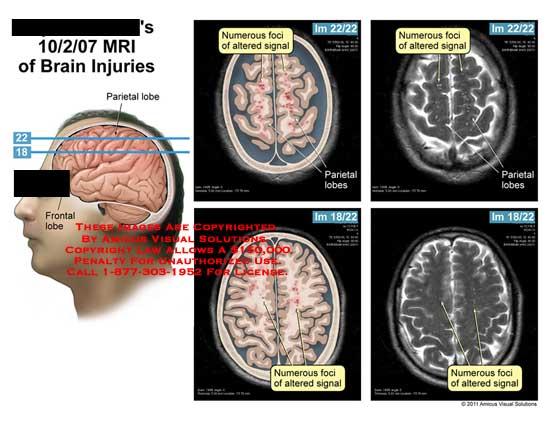 amicus,injury,brain,injuries,MRI,parietal,lobe,frontal,foci,altered,signal