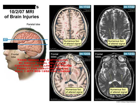 amicus,injury,brain,injuries,MRI,parietal,lobe,frontal,foci,altered,signal