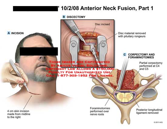 amicus,surgery,neck,fusion,spine,part,1,incision,4cm,skin,midline,discectomy,incised,material,removed,pituitary,rongeurs,corpectomy,foraminotomies,performed,C4,C5,nerve,roots,longitudinal,ligament