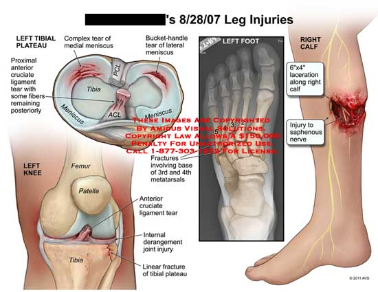 amicus,injury,leg,injuries,tibial,plateau,anterior,cruciate,ligament,tear,fibers,remaining,complex,meniscus,PCL,ACL,bucket-handle,knee,femur,patella,tibia,linear,fractures,internal,derangement,joint,base,3rd,third,4th,fourth,metatarsals,foot,calf,laceration,saphenous,nerve