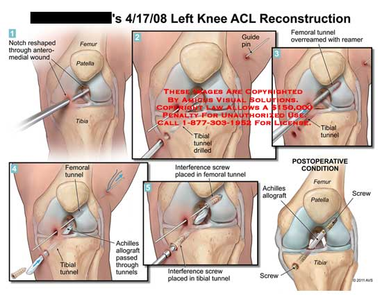 amicus,knee,ACL,anterior,cruciate,ligament,reconstruction,notch,reshaped,wound,femur,patella,tibial,guide,pin,tunnels,drilled,femoral,overreamed,reamer,achilles,allograft,passed,through,interference,screw,placed,postoperative,condition