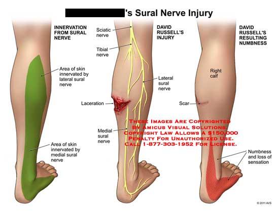 sural nerve injury, Human Body